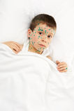 Child has the virus on skin Stock Image