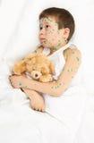 Child has the virus on skin Royalty Free Stock Image