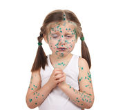 Child has the virus on skin Stock Images