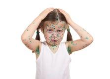 Child has the virus on skin Royalty Free Stock Photos