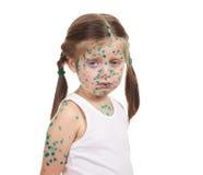 Child has the virus on skin Stock Photos
