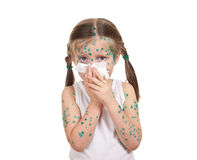 Child has the virus on skin Royalty Free Stock Photography