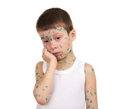 Child has the virus on skin Stock Photography
