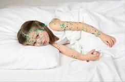 Child has the virus on skin Royalty Free Stock Photo