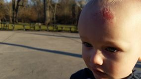 Child with Head Injury. Closeup of child with scrape or scratch injury on forehead Stock Photos