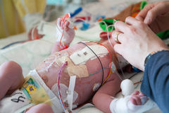 Child intensive care. Intensive care after heart surgery. Two month old boy Royalty Free Stock Photos