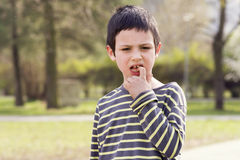 Child with a loose or missing tooth Royalty Free Stock Photo