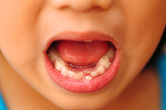 Child loose tooth Royalty Free Stock Images