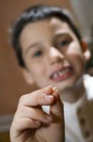 Child with lost tooth Stock Photo