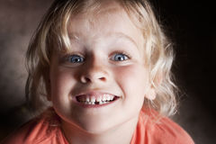 Child with missing tooth Stock Image