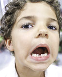 Child Missing Tooth Royalty Free Stock Images