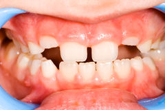 Child mouth. Healthy frontal teeth in course of eruption in childhood Stock Photos