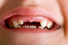 Child mouth missing teeth. Close up photo of a child's mouth missing her two front teeth Royalty Free Stock Photography