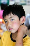 Child With Multiple Mosquito Bites. Boy with multiple mosquito bites on face and arm stock image