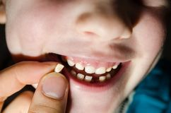 Fallen tooth stock photography