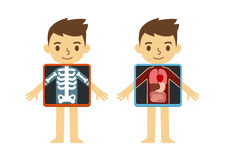 Child x-ray. Two illustrations of cute cartoon boy with x-ray screen showing his internal organs and skeleton. Element of educational infographics for kids Royalty Free Stock Images