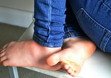 Child`s legs and feet on a chair. Child sitting at a chair with denim jeans on and bare feet Royalty Free Stock Photography