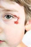 Child with a scrape near his eye Stock Image