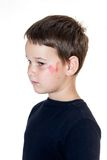 Child with a scraped face Royalty Free Stock Image