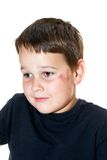 Child with a scraped face. Sad boy with a scraped face stock photo
