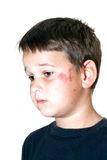 Child with a scraped face Stock Photography