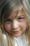 Child with scrapes. Portrait of a 5-year-old girl with a scraped and cut cheek from a playground accident royalty free stock images