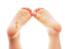 Child showing feet with a fresh wound underneath the right heel Royalty Free Stock Photos
