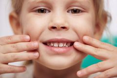 Child showing teeth. Cute little child with perfect toothy smile. Concept of teeth cure and cavity protection Stock Images