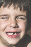Child shows missing teeth Stock Images