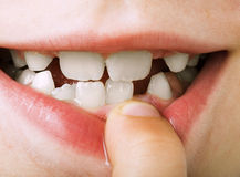 Child shows tooth royalty free stock photo