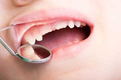 Child teeth examined by dentist Royalty Free Stock Image