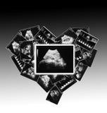 child on the ultrasound image Royalty Free Stock Photo