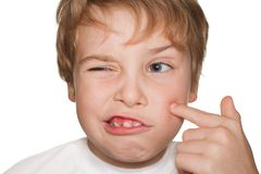 Child in white finger indicates pimple Royalty Free Stock Images