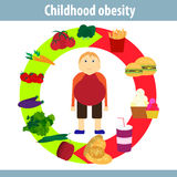 Childhood obesity infographics. Vector illustration Royalty Free Stock Photography