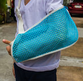 Children arm splint a broken. Arm royalty free stock image