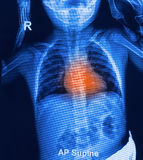 Children chest X-rays Stock Images
