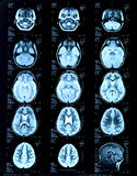 Children's head Magnetic risonance image. MRI Royalty Free Stock Images