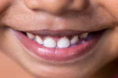 Children smile with teeth Royalty Free Stock Images