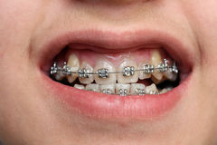 Children teeth with braces. Close-up view on children teeth with braces Stock Image