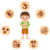 Children who suffer from allergies Stock Images