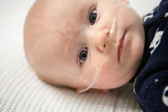 Childrens Hospital: Breathing Tube. Baby in hospital bed getting medical treatment stock photo