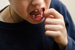Child Shows a Loose Tooth. A 9 year old child shows a loose tooth on the bottom row of teeth Stock Photo