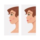 Chin antes e depois da cirurgia plástica Ilustração do vetor Imagem de Stock Royalty Free