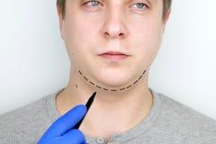 Chin-Aufzug - mentoplasty Ein Mann an der Aufnahme am plastischen Chirurgen Vorbereitung f?r Chirurgie lizenzfreie stockfotos