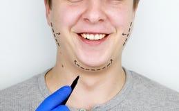 Chin-Aufzug - mentoplasty Ein Mann an der Aufnahme am plastischen Chirurgen Vorbereitung f?r Chirurgie lizenzfreies stockfoto