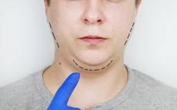 Chin lift - mentoplasty. A man at the reception at the plastic surgeon. Preparation for surgery royalty free stock image