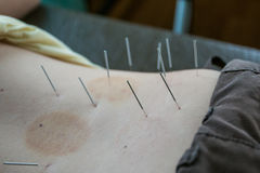 Chinese acupuncture on back for treatment. Backache Stock Photography