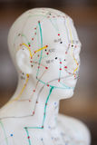 Chinese Acupunctuurgeneeskunde royalty-vrije stock foto's