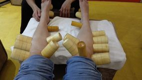 Chinese massage therapy with wooden cups on legs royalty free stock image