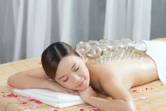 A Chinese medicine cupping of the young lady Stock Photos
